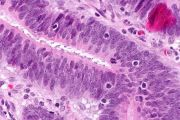 Terapia rivoluzionaria con cellule immunitarie TIL uccide il cancro al seno